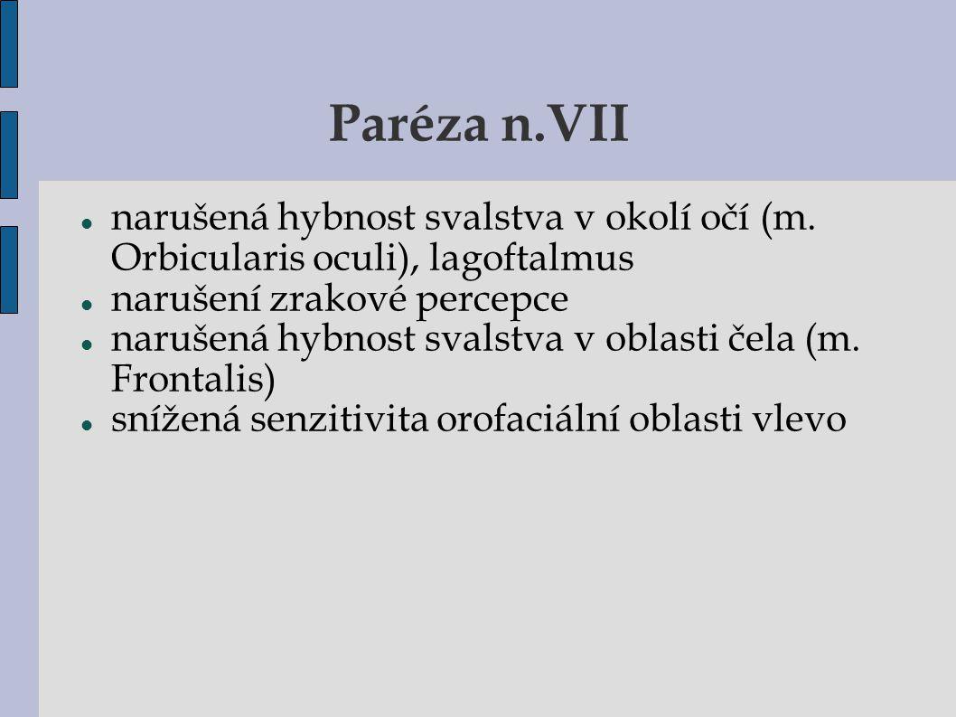 Paréza n.VII narušená hybnost svalstva v okolí očí (m. Orbicularis oculi), lagoftalmus. narušení zrakové percepce.