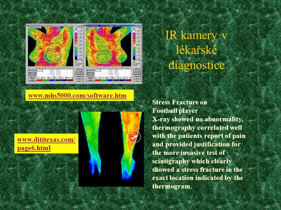 IR kamery v lékařské diagnostice
