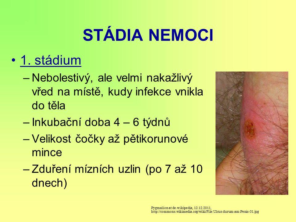 STÁDIA NEMOCI 1. stádium. Nebolestivý, ale velmi nakažlivý vřed na místě, kudy infekce vnikla do těla.