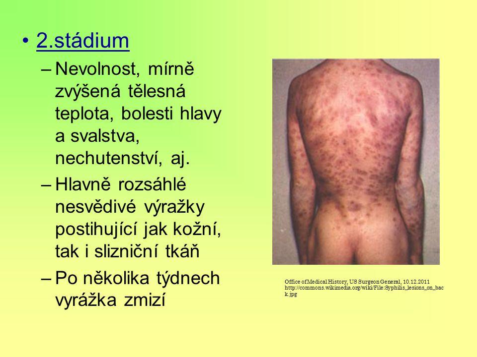 2.stádium Nevolnost, mírně zvýšená tělesná teplota, bolesti hlavy a svalstva, nechutenství, aj.