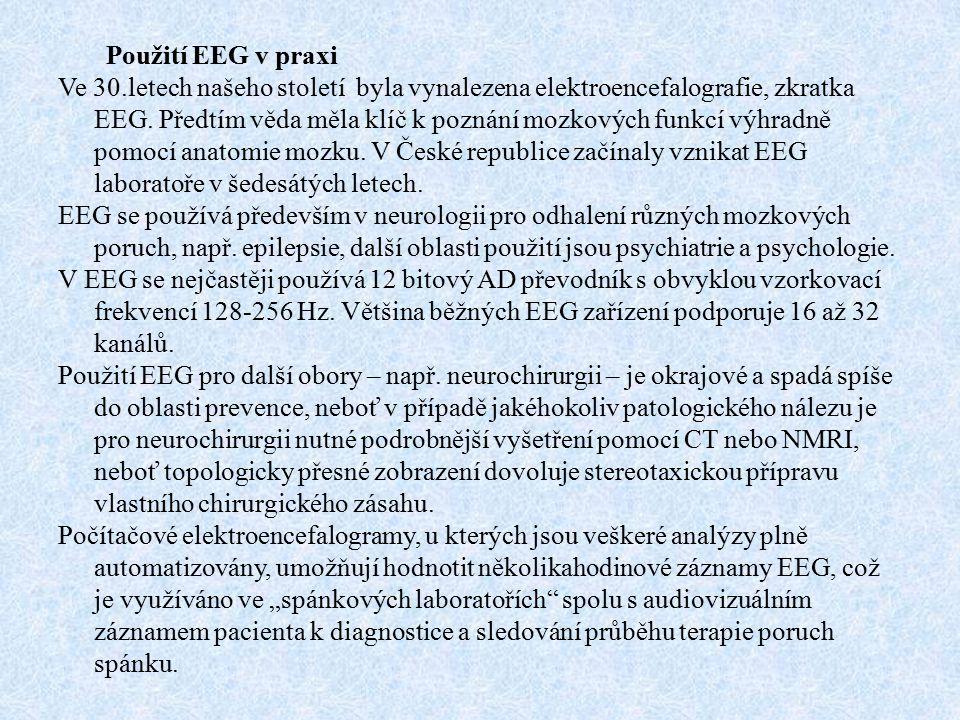 Použití EEG v praxi