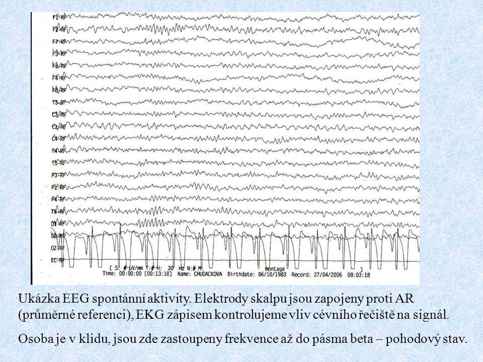 Ukázka EEG spontánní aktivity