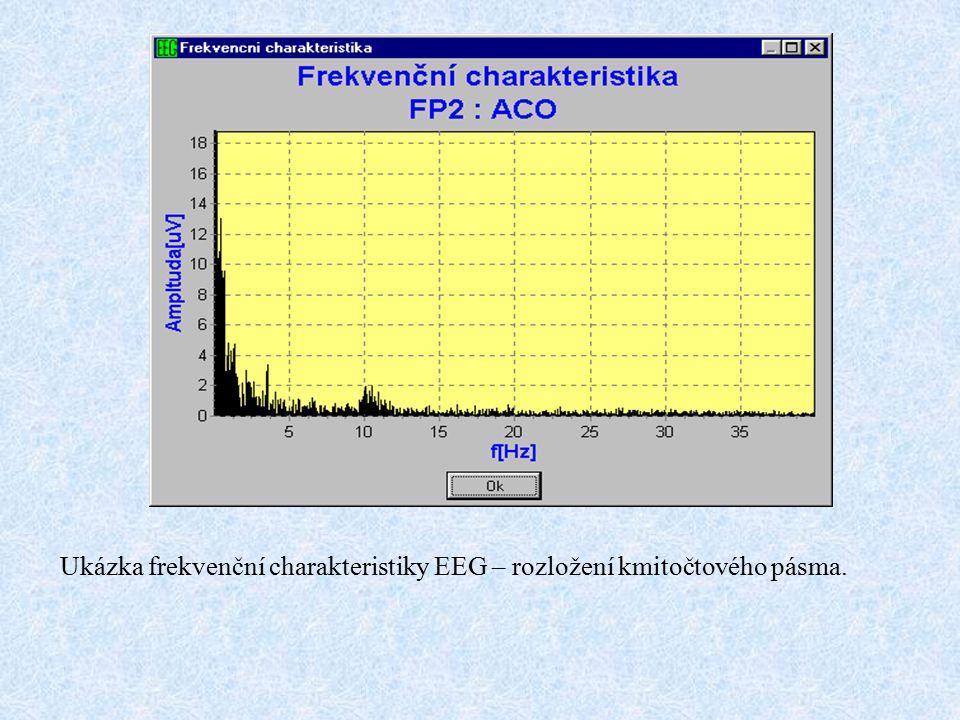 Ukázka frekvenční charakteristiky EEG – rozložení kmitočtového pásma.
