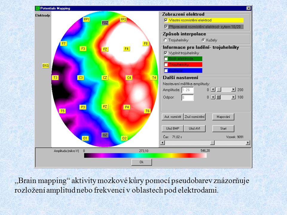 """""""Brain mapping aktivity mozkové kůry pomocí pseudobarev znázorňuje rozložení amplitud nebo frekvencí v oblastech pod elektrodami."""