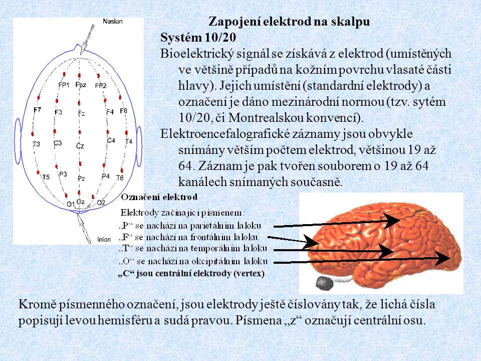 Zapojení elektrod na skalpu Systém 10/20