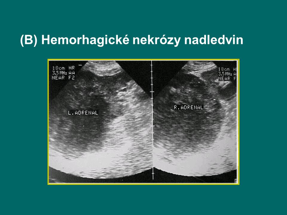 (B) Hemorhagické nekrózy nadledvin
