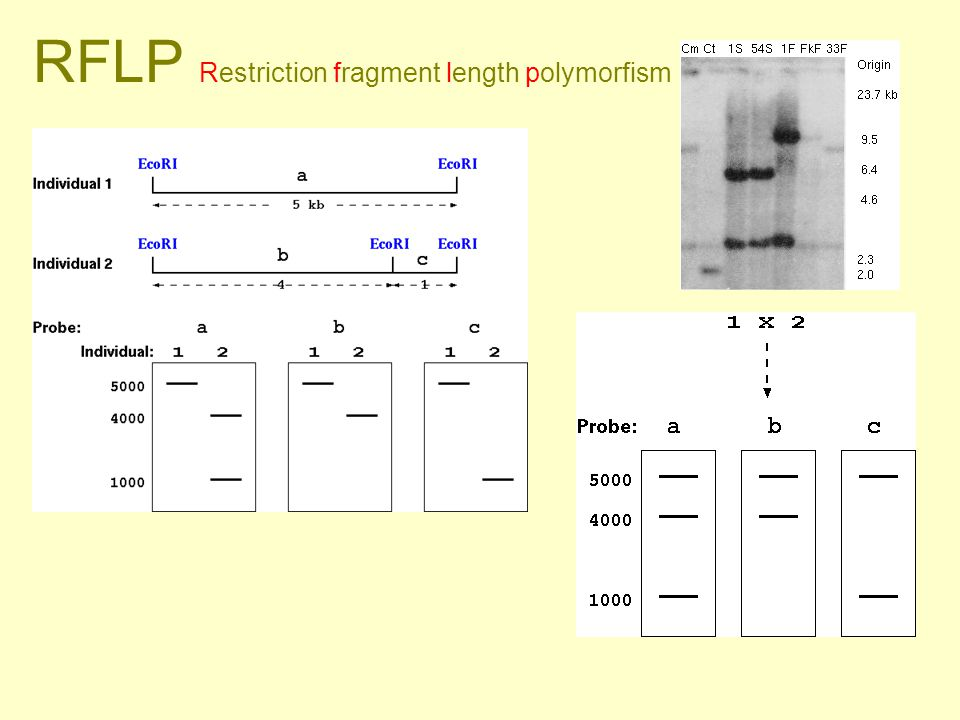 RFLP Restriction fragment length polymorfism