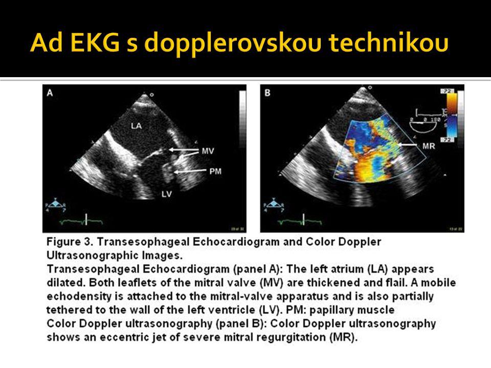Ad EKG s dopplerovskou technikou