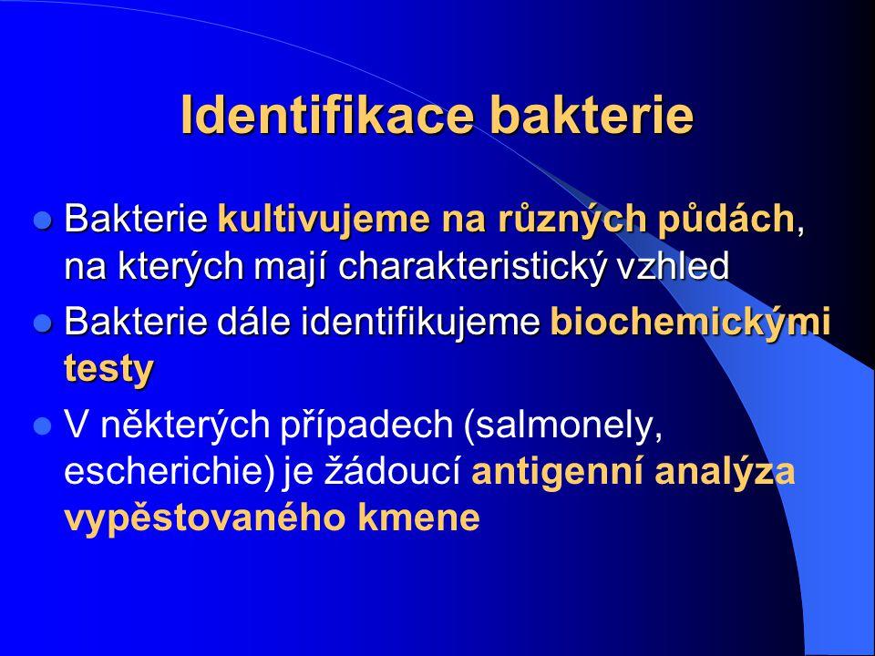 Identifikace bakterie
