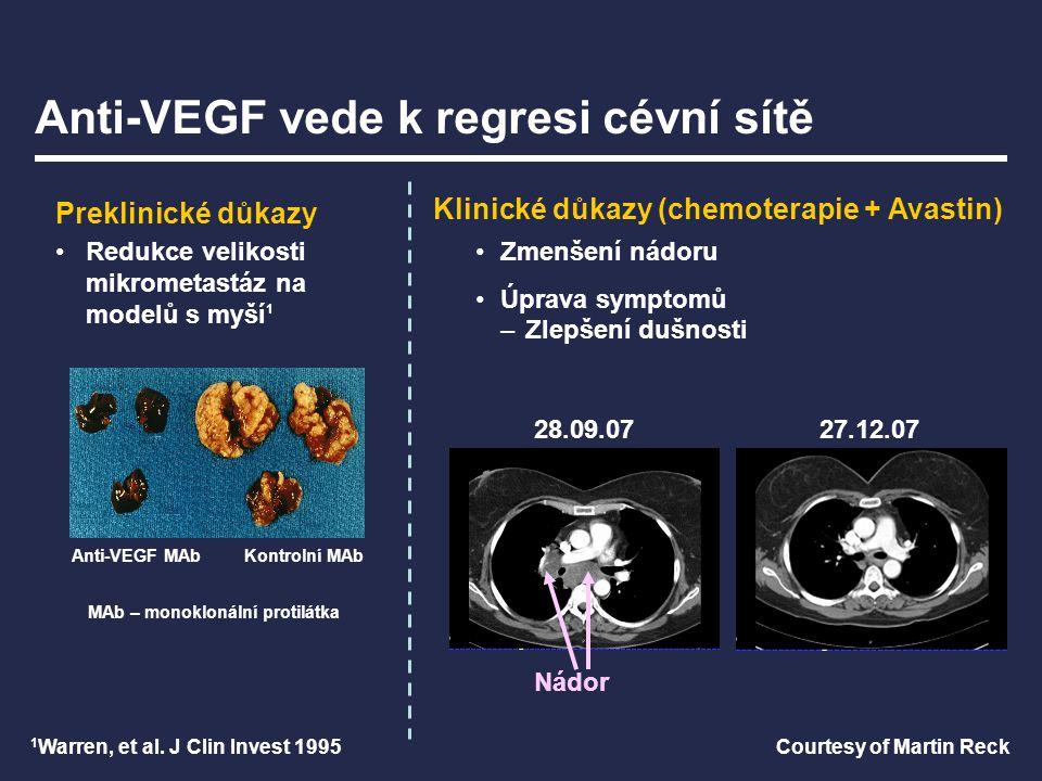 Anti-VEGF vede k regresi cévní sítě