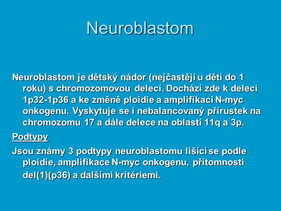 Neuroblastom