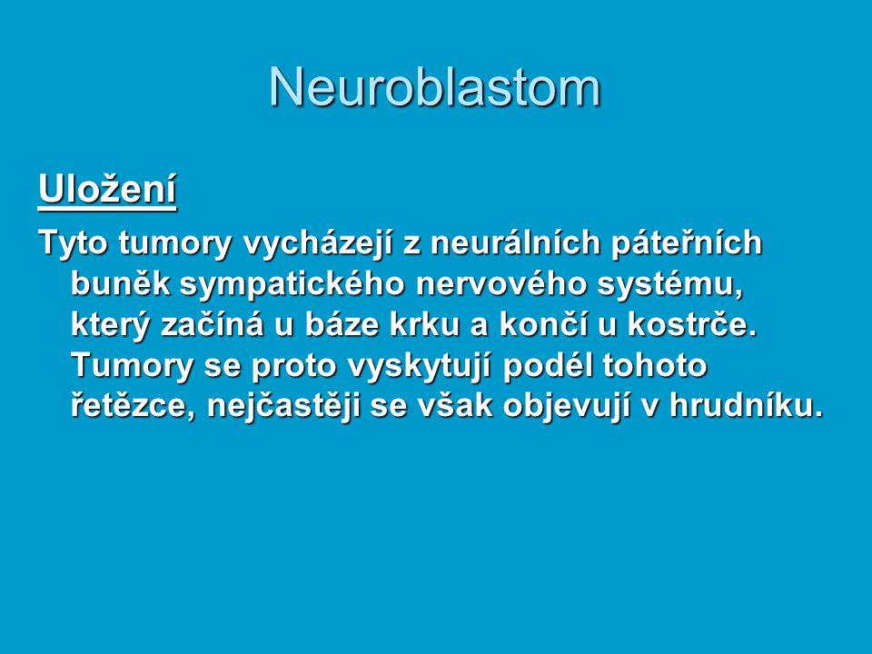 Neuroblastom Uložení.