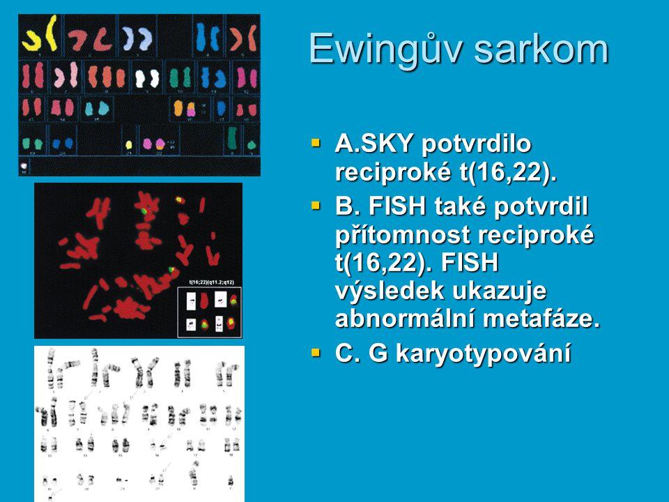 Ewingův sarkom A.SKY potvrdilo reciproké t(16,22).
