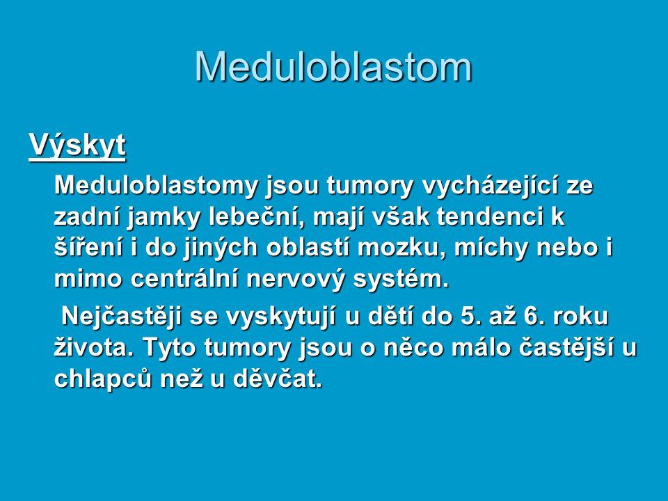 Meduloblastom Výskyt.