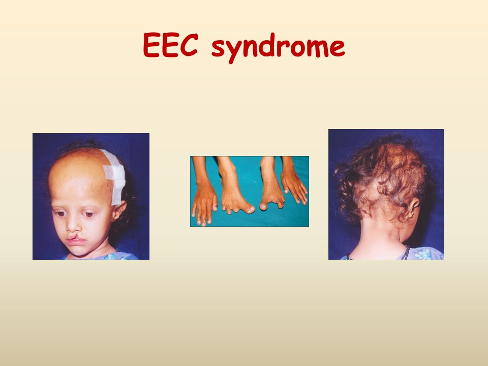 EEC syndrome