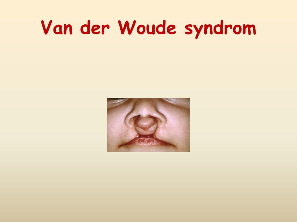 Van der Woude syndrom