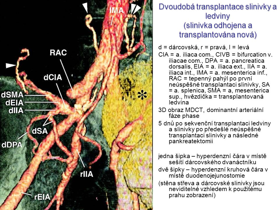 Dvoudobá transplantace slinivky a ledviny (slinivka odhojena a transplantována nová)