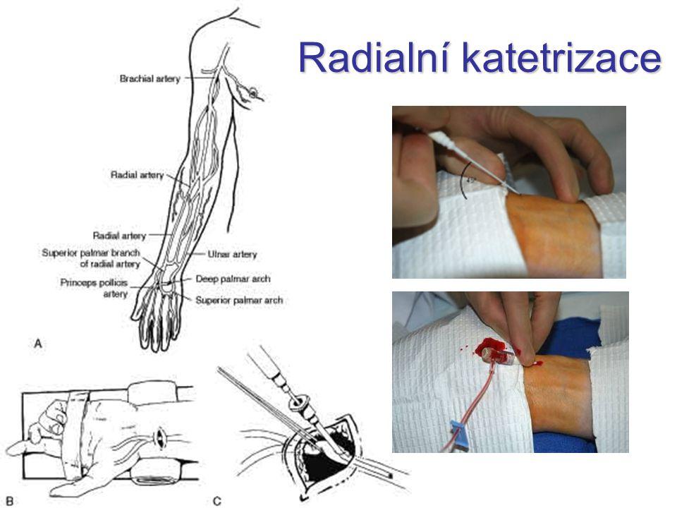 Radialní katetrizace