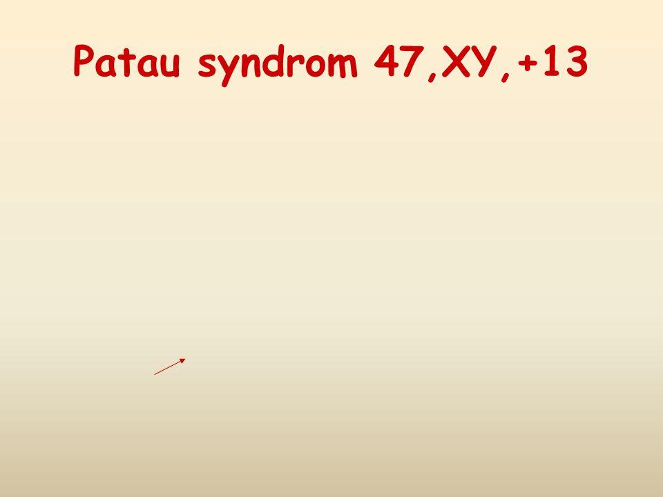 Patau syndrom 47,XY,+13 28