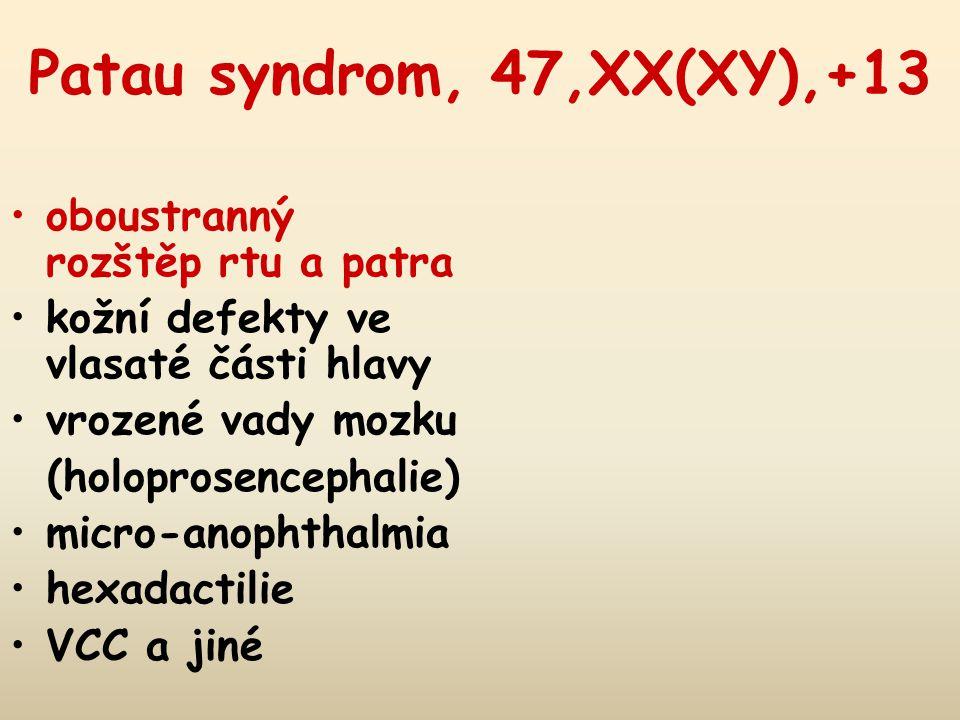 Patau syndrom, 47,XX(XY),+13 oboustranný rozštěp rtu a patra
