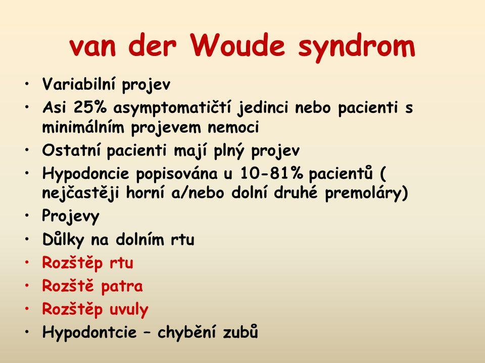 van der Woude syndrom Variabilní projev