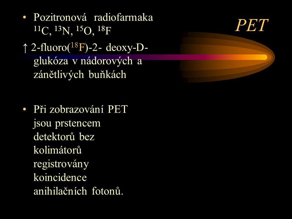 PET Pozitronová radiofarmaka 11C, 13N, 15O, 18F