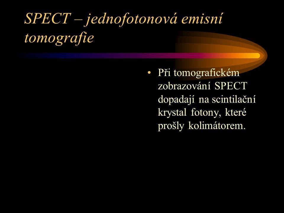SPECT – jednofotonová emisní tomografie