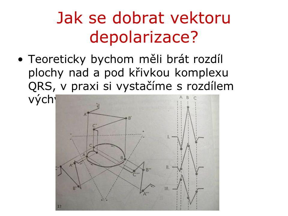 Jak se dobrat vektoru depolarizace