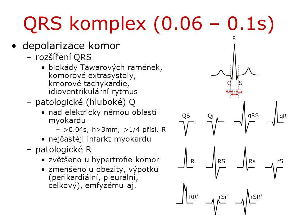 QRS komplex (0.06 – 0.1s) depolarizace komor rozšíření QRS