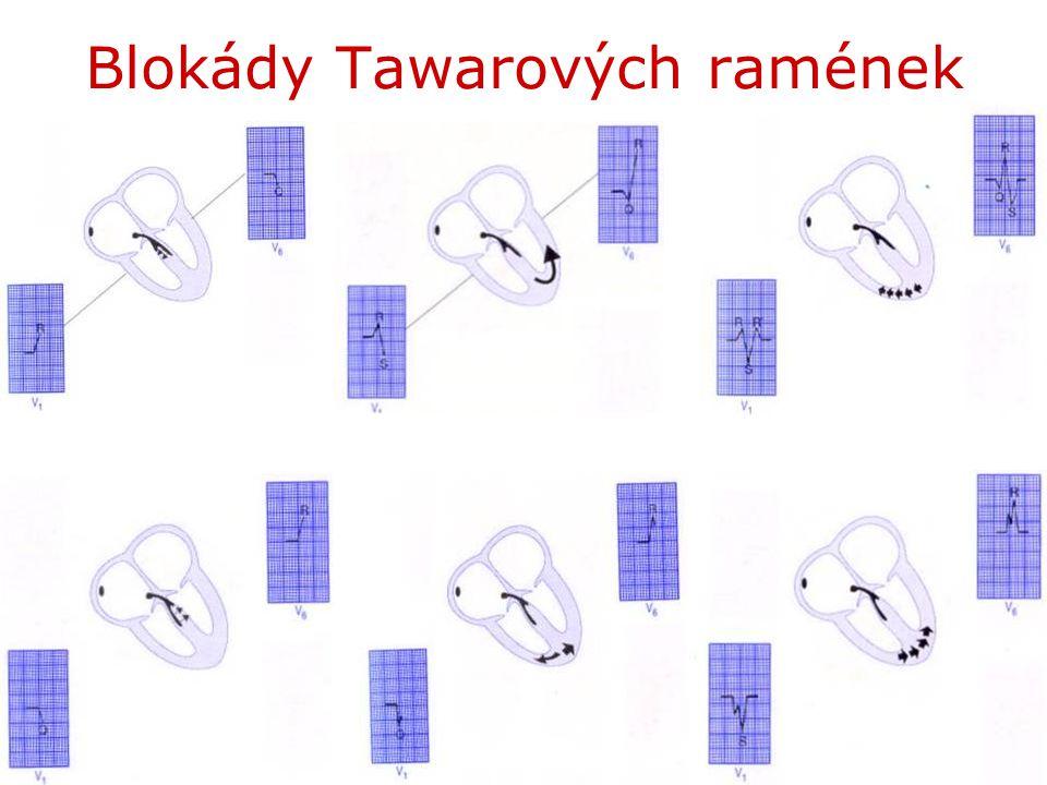 Blokády Tawarových ramének