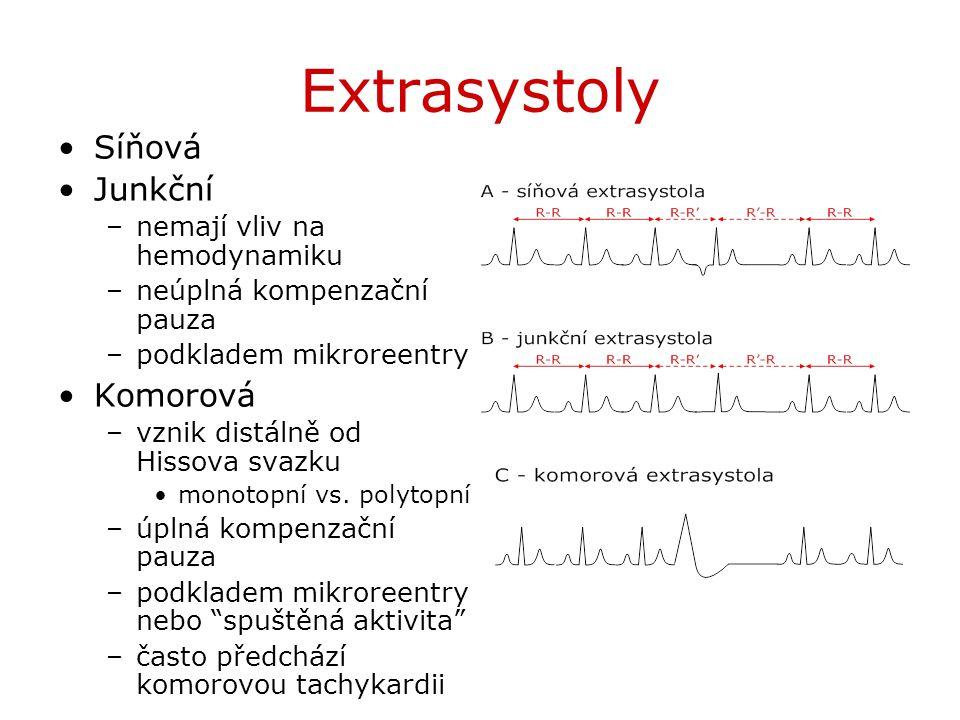 Extrasystoly Síňová Junkční Komorová nemají vliv na hemodynamiku