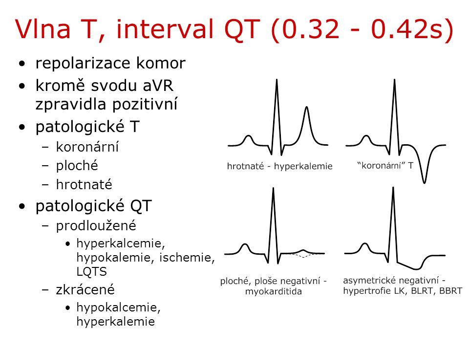 Vlna T, interval QT (0.32 - 0.42s) repolarizace komor