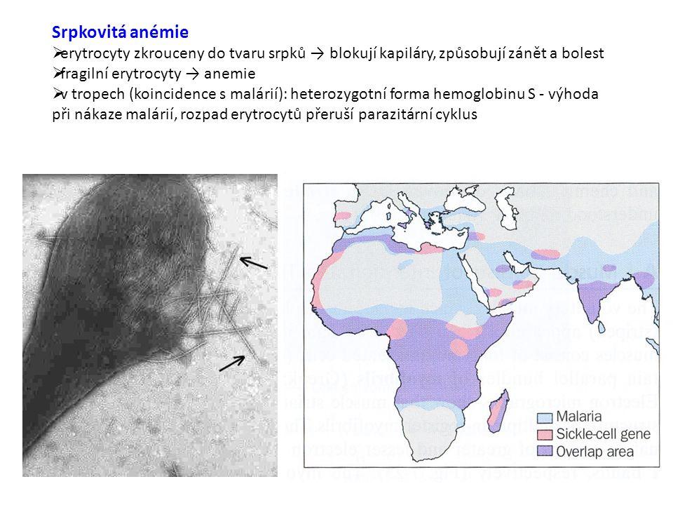 Srpkovitá anémie erytrocyty zkrouceny do tvaru srpků → blokují kapiláry, způsobují zánět a bolest. fragilní erytrocyty → anemie.