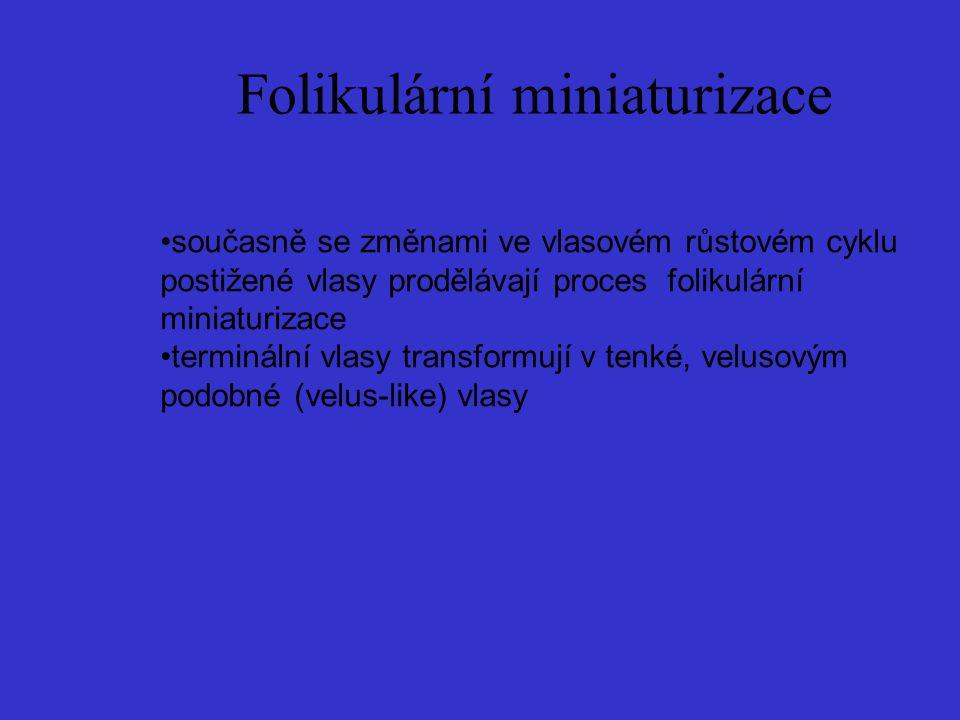 Folikulární miniaturizace