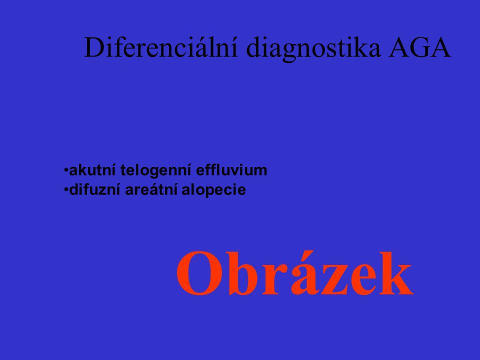 Diferenciální diagnostika AGA