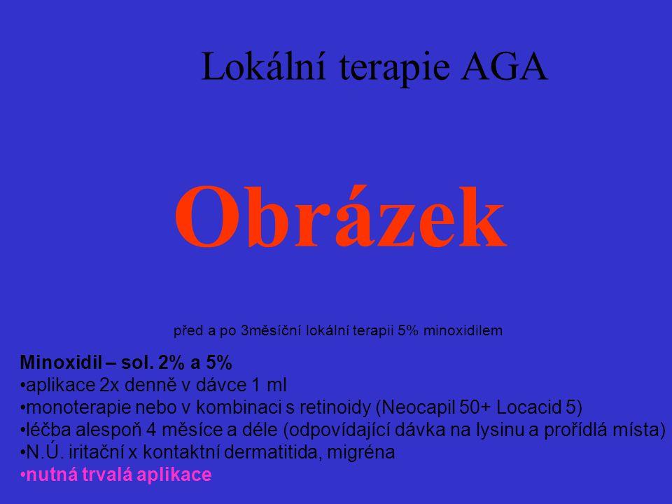 Obrázek Lokální terapie AGA Minoxidil – sol. 2% a 5%