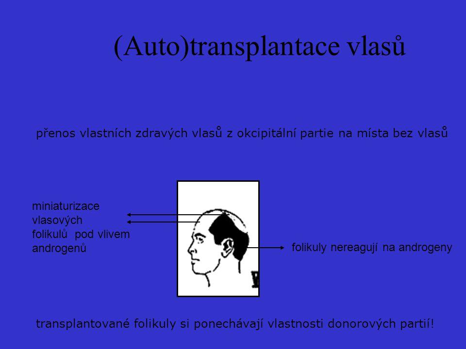 (Auto)transplantace vlasů