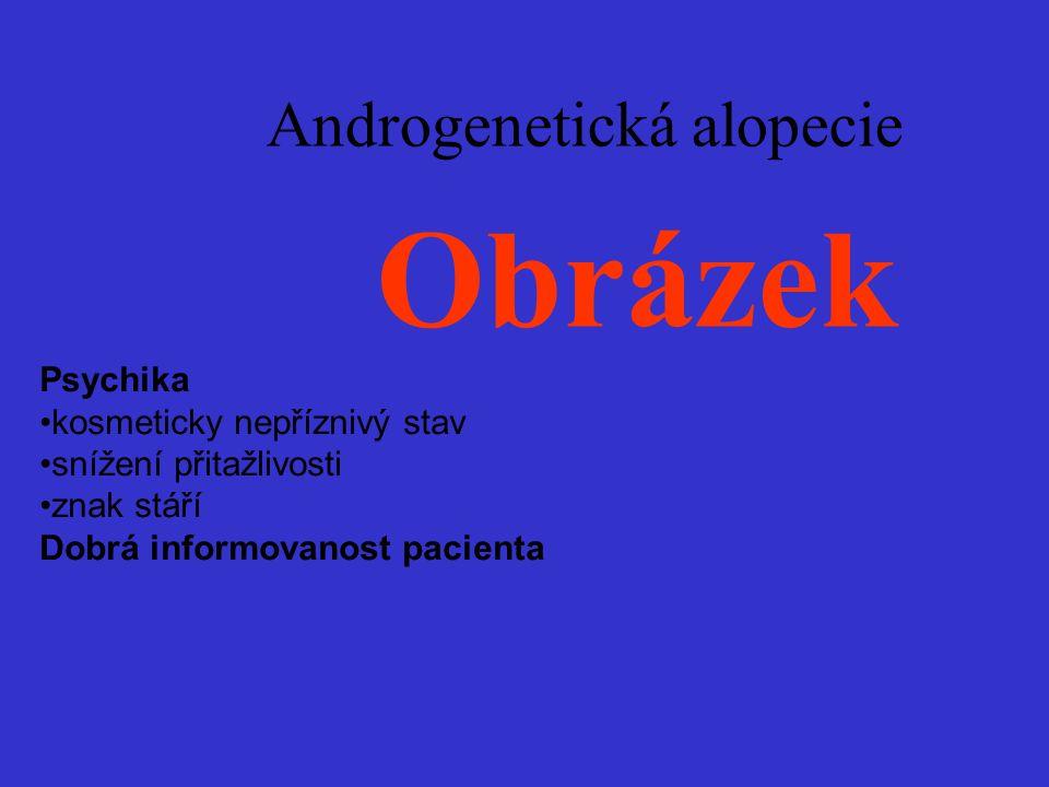 Androgenetická alopecie