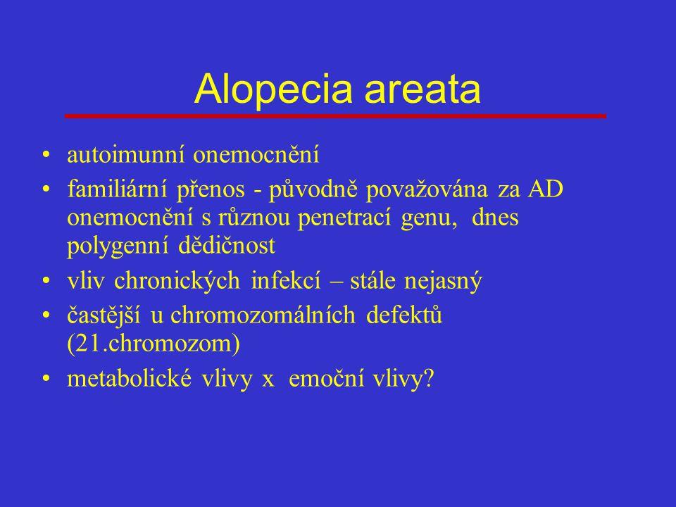 Alopecia areata autoimunní onemocnění