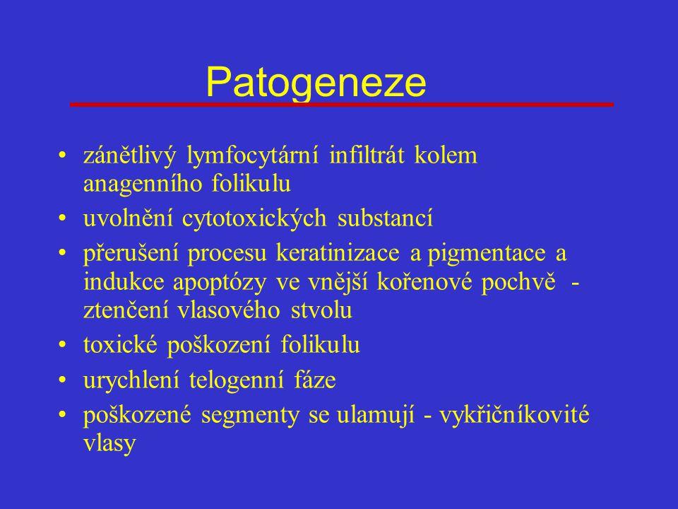 Patogeneze zánětlivý lymfocytární infiltrát kolem anagenního folikulu