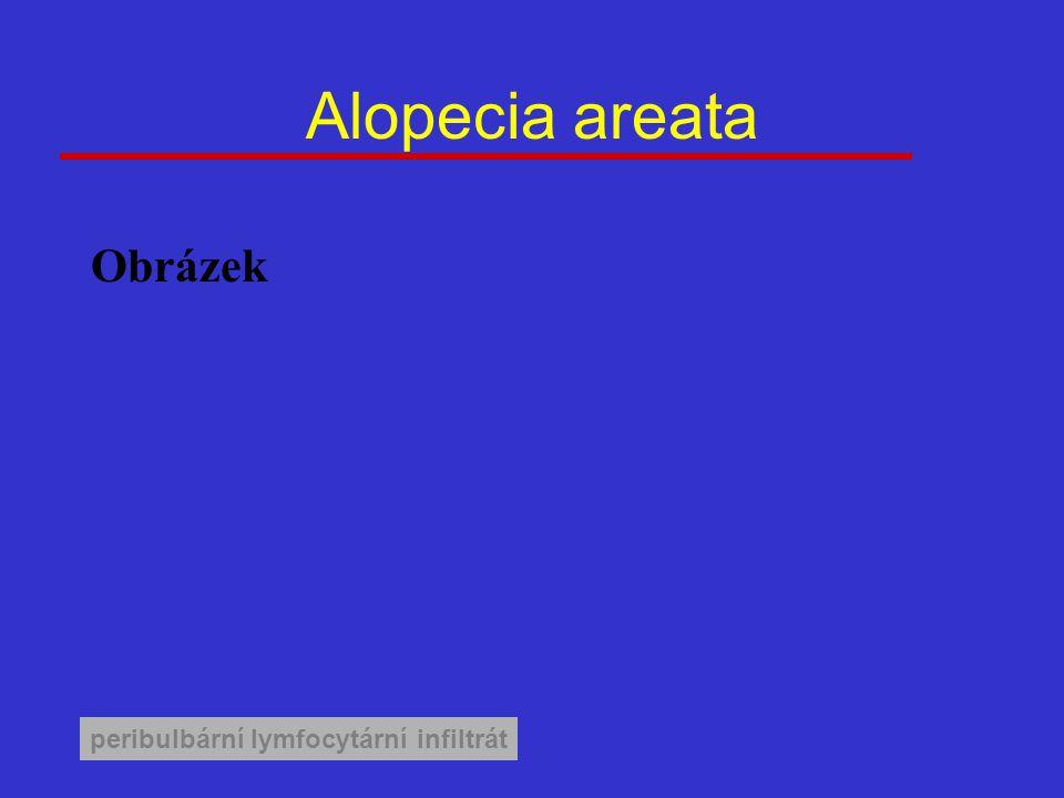 Alopecia areata Obrázek peribulbární lymfocytární infiltrát