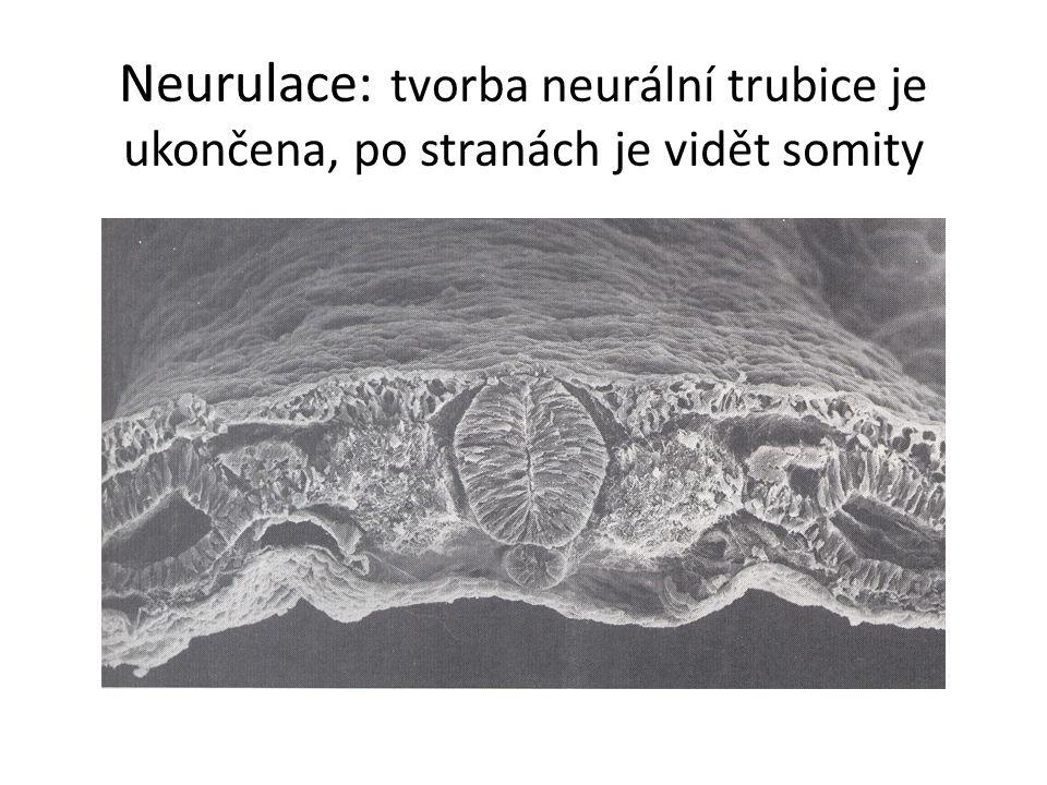 Neurulace: tvorba neurální trubice je ukončena, po stranách je vidět somity