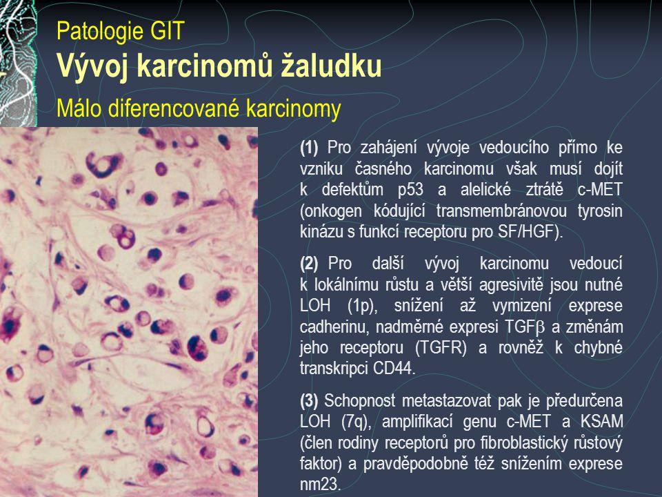 Vývoj karcinomů žaludku Málo diferencované karcinomy