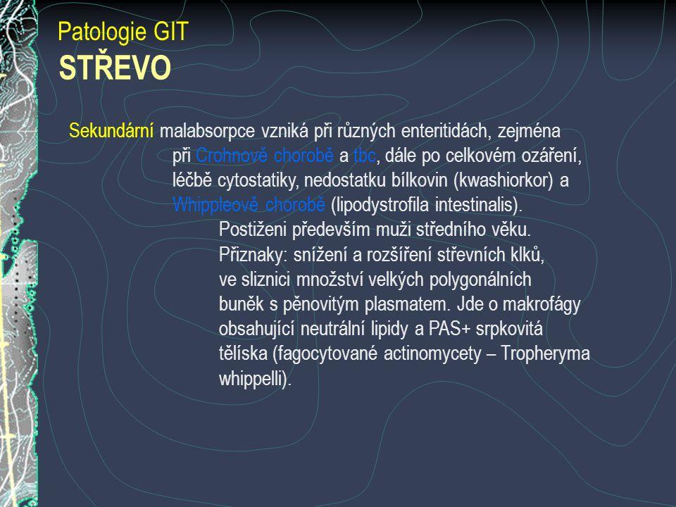 Patologie GIT STŘEVO. Sekundární malabsorpce vzniká při různých enteritidách, zejména. při Crohnově chorobě a tbc, dále po celkovém ozáření,