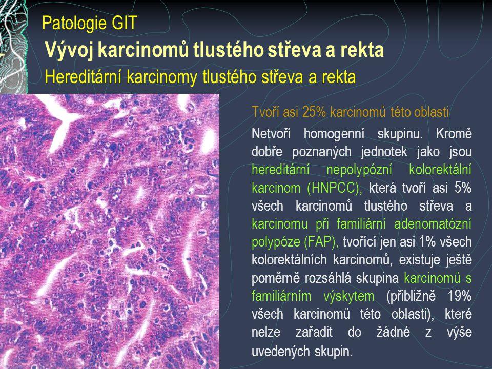 Patologie GIT Vývoj karcinomů tlustého střeva a rekta Hereditární karcinomy tlustého střeva a rekta.