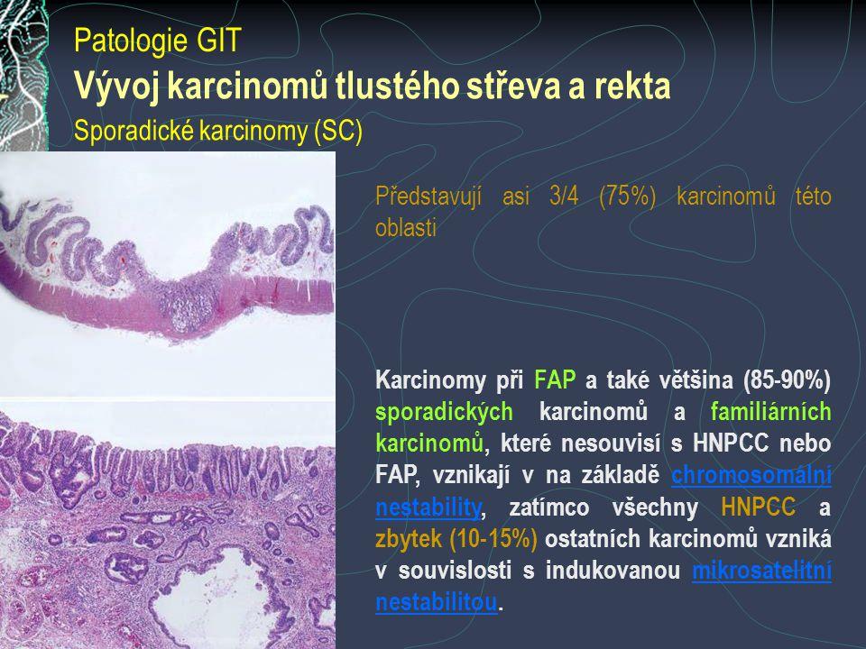 Vývoj karcinomů tlustého střeva a rekta Sporadické karcinomy (SC)