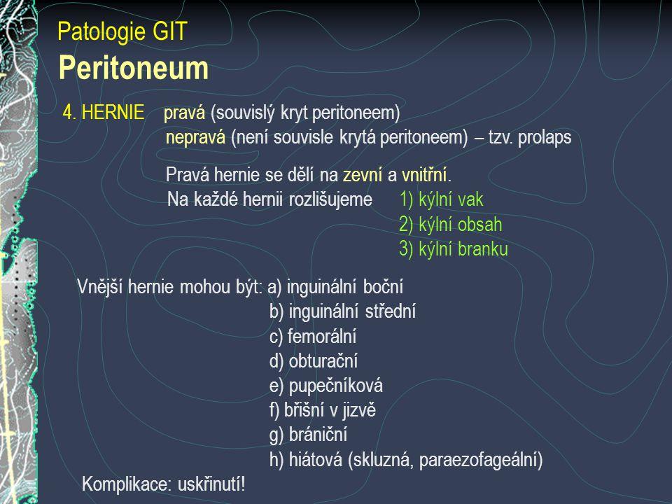 Peritoneum Patologie GIT 4. HERNIE pravá (souvislý kryt peritoneem)
