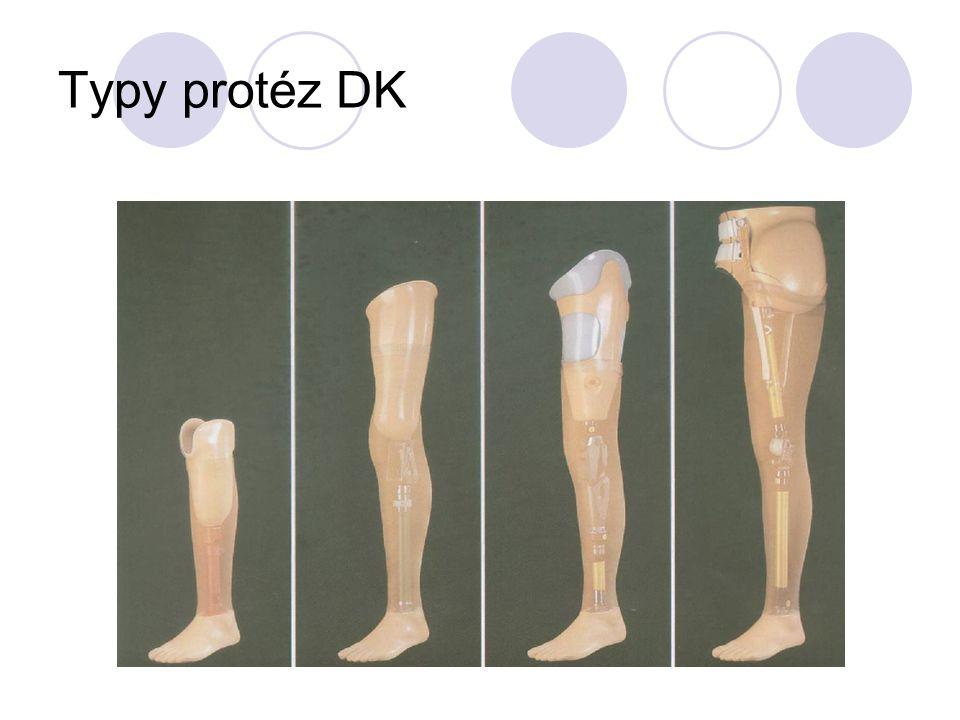 Typy protéz DK
