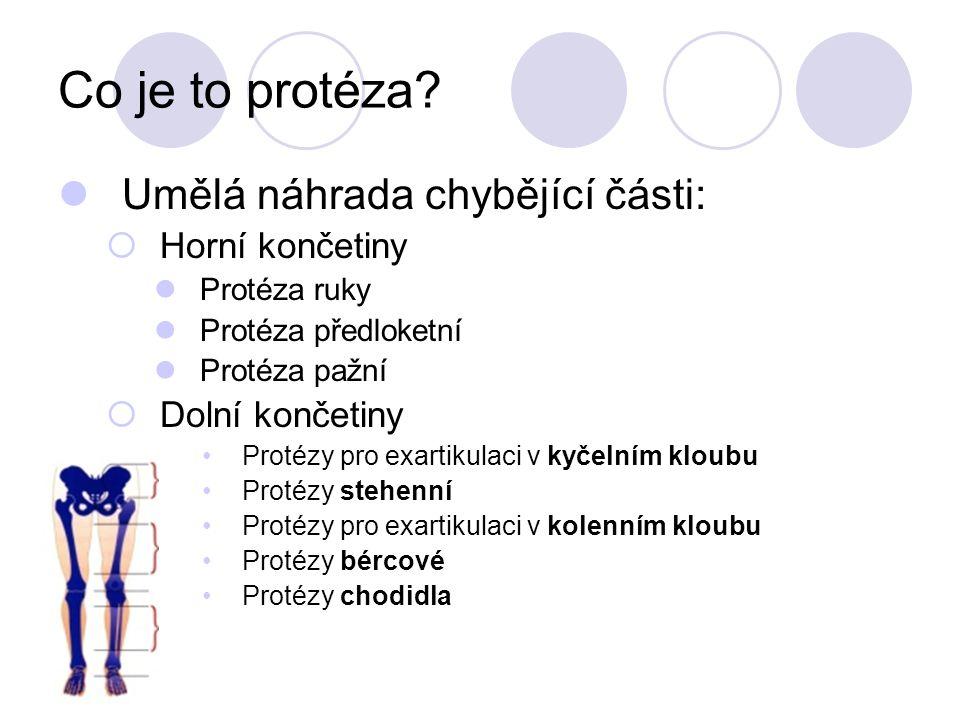 Co je to protéza Umělá náhrada chybějící části: Horní končetiny