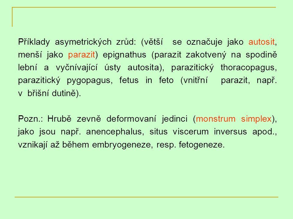 Příklady asymetrických zrůd: (větší se označuje jako autosit, menší jako parazit) epignathus (parazit zakotvený na spodině lební a vyčnívající ústy autosita), parazitický thoracopagus, parazitický pygopagus, fetus in feto (vnitřní parazit, např. v břišní dutině).